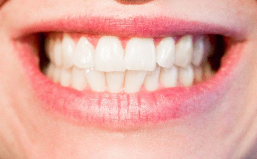 Nowoczesna technika stosowana w salonach stomatologii estetycznej może sprawić, że odzyskamy ładny uśmiech.
